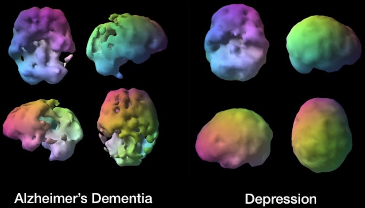 Is it Depression or Dementia? Brain SPECT Imaging Helps ...