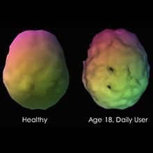 Brain image of healthy person versus daily user of marijuana